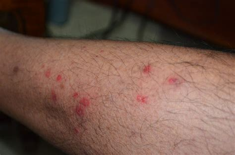 pics of bed bug bites bed bug bite