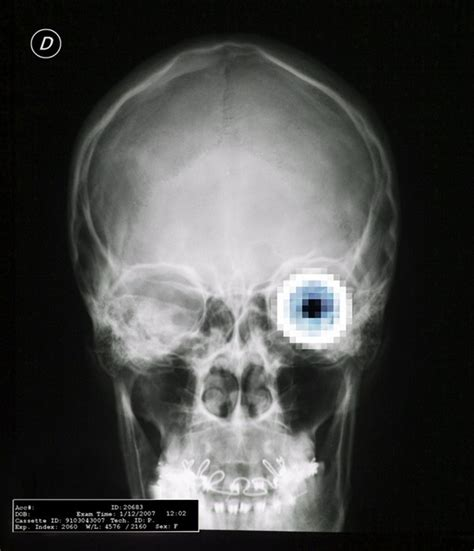 x ray poster design 66 best pixel posters and prints images on pinterest