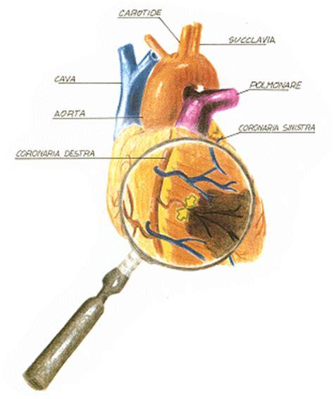 l infarto del miocardio riperfusione del miocardio