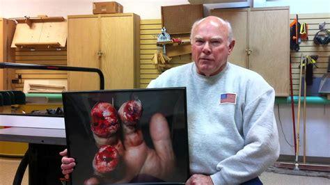 table saw injury helpline sawstop craig b describes his table saw injury youtube