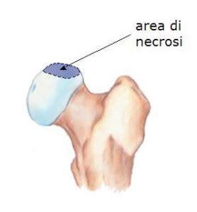 necrosi testa femore sintomi necrosi della testa femore centro essere