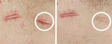 hypertrophic scar after c section hypertrophic scars scar treatment blog page 2