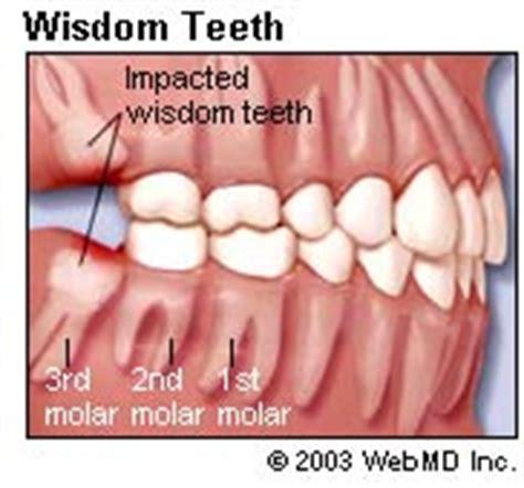 comfort dental lafayette co image gallery wisdomteeth