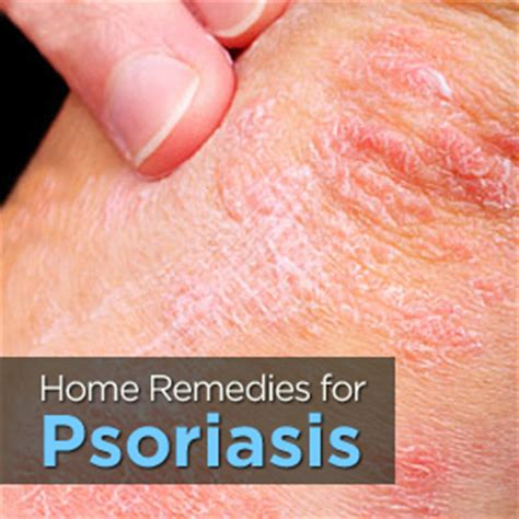 Psoriasis Home Remedies by Treating Psoriasis Naturally