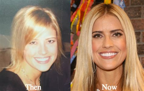 Tarek And Christina S House by Christina El Moussa Plastic Surgery Rumors Before And