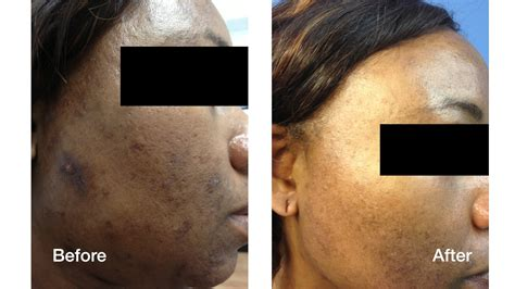 dark skin laser skin care treatments skin perfect