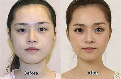 when do you plastic surgery how do you feel about plastic surgery i use to believe