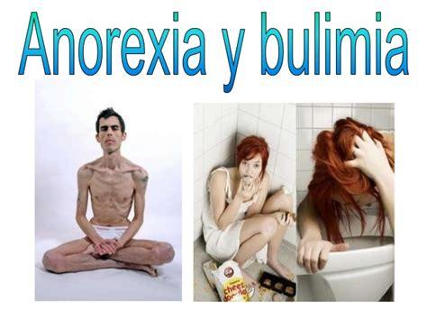 anorexia y bulimia nerviosa htmlrincondelvagocom anorexia y bulimia trastornos alimenticios anorexia y bulimia