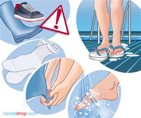 kill athletes foot in shoes tinea pedis athlete s foot best ways to treat it