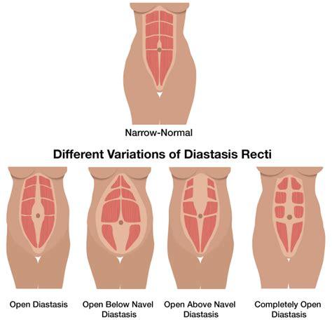 diastasis recti part  diastasis recti postpartum
