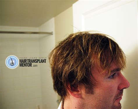 hate hair after surgery 2015 want to see an amazing hair transplant result
