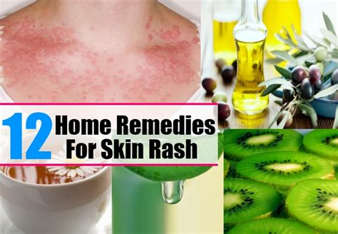 12 home remedies for skin rash treatments cure
