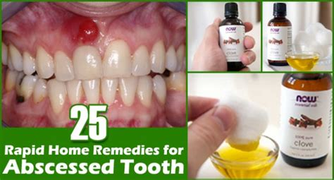 home remedies for broken tooth
