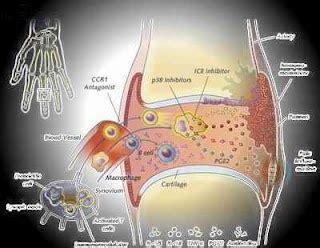 Clinical Picture Of Rheumatoid Arthritis