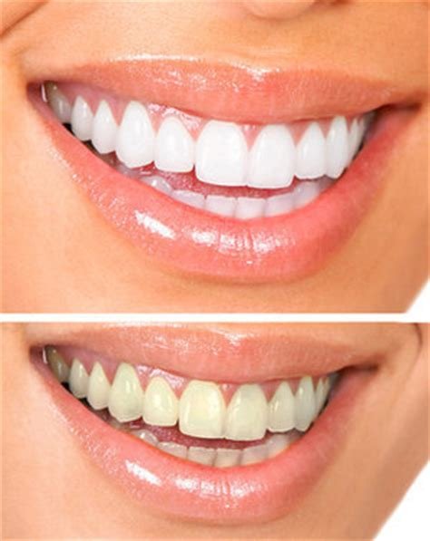 teeth whitening ins  outs  professional
