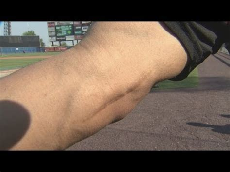 tommy john tattoo top images for tattoos