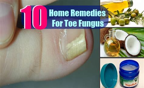 10 toe fungus home remedies treatments cures