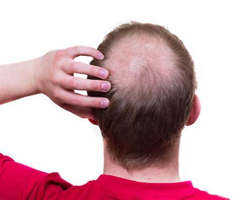 follicolite testa problemi al cuoio capelluto sintomi cause rimedi