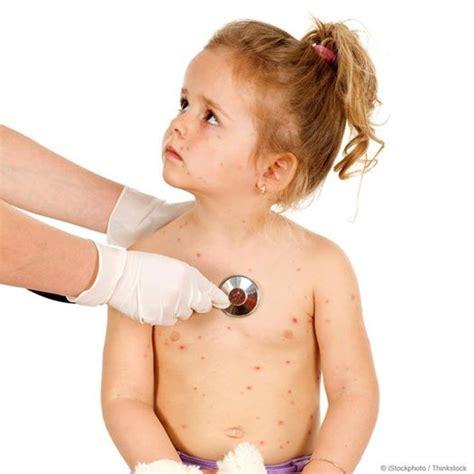 imagenes varicela niños vacunados sari 243 n rub 233 ola lo que necesitas saber argentina