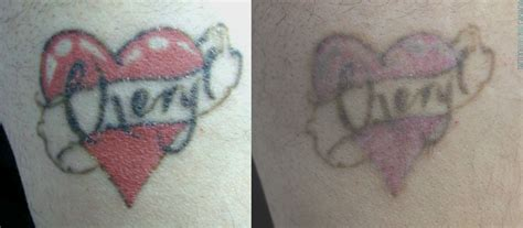 tattoo removal after care laser removal aftercare remedies