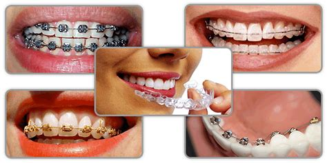 Harga Clear Ortho orthodontic treatment dr rafih khoury dental clinic