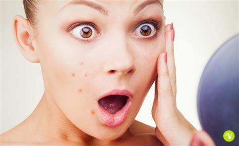 alimenti contro i brufoli dieta contro l acne ecco cosa mangiare e cosa evitare