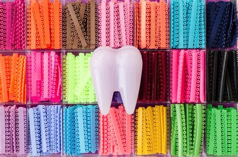 shapes and colors band what are orthodontic ligatures orthodontics in
