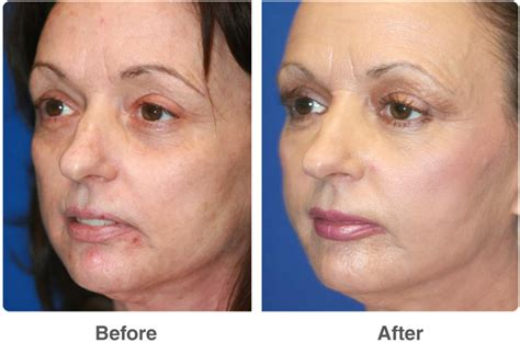 laser skin resurfacing patient 3 individual results