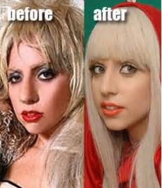 Vanity Cosmetic Surgery Death Lady Gaga Nose Job Yes Or No Today S Evil Beet Gossip