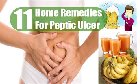 11 home remedies for peptic ulcer treatments and