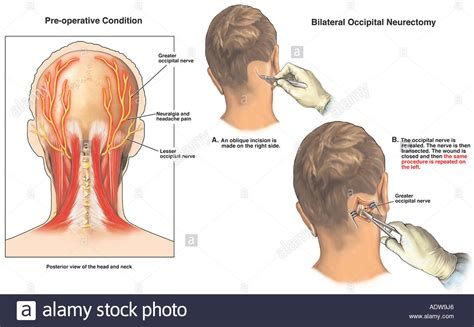 left side pain after c section headache pain occipital neuralgia with surgical