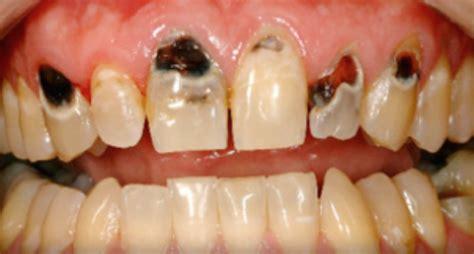 black teeth stains on your teeth beeston dental practice