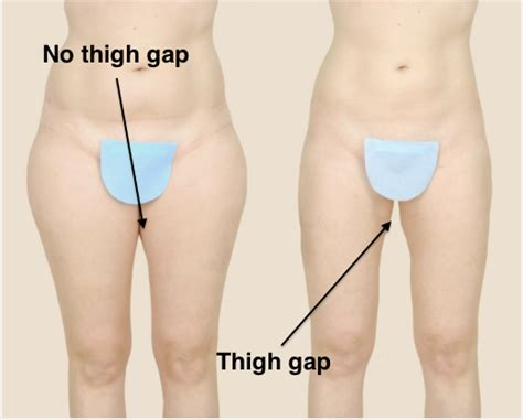 coolsculpting your thigh gap away   plastic surgery blog