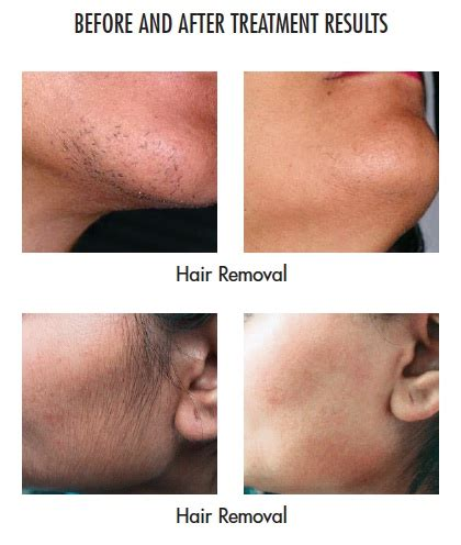 does hair of the work laser hair removal welcome to anti aging centers of connecticut