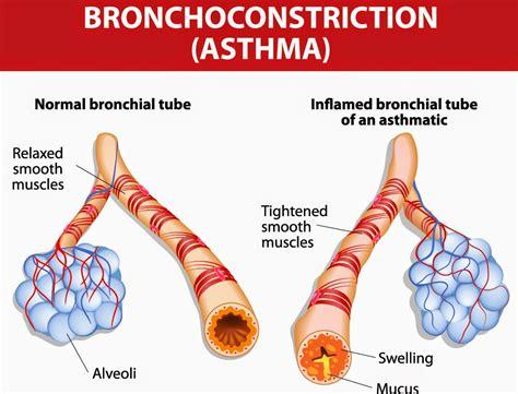 Terapi Alami Untuk Asma cara mengatasi asma bronkial dengan ramuan alami