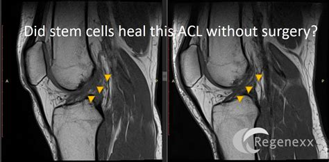 acl surgery cost acl surgery cost