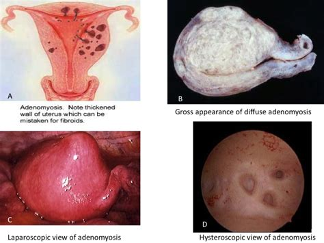 can c section cause endometriosis do you know what is adenomyosis my gynae