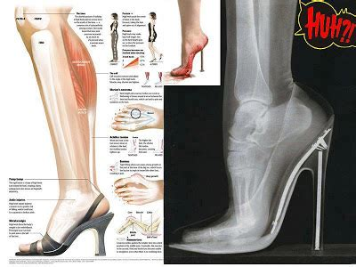 High Heel Tahu Tali T panitia biologi smkasr april 2012