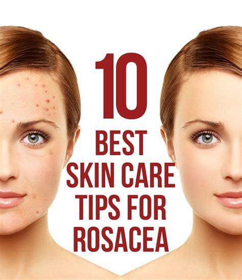 best skin care tips 10 best skin care tips for rosacea â ð î 162 ðºñ