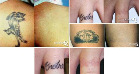 post laser tattoo removal s permanent cosmetics photo gallery laser