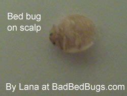 do bed bugs bite your scalp carpet beetle bites on scalp carpet vidalondon