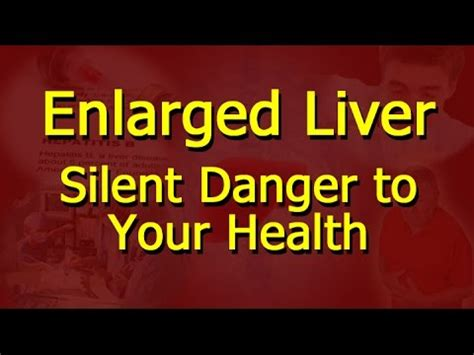Detox Meaning In Marathi by Enlarged Liver Silent Danger To Your Health