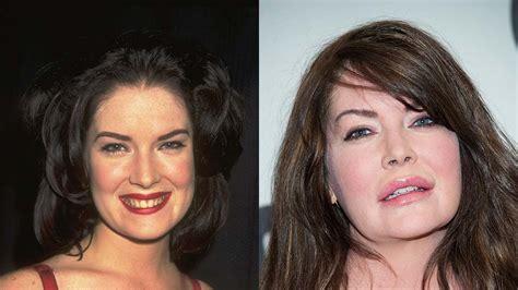celebrity plastic surgery blog celeb surgery pics 12 celebrity plastic surgery nightmares poplyft