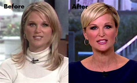 juliet huddys hair was short is she wearing extensions juliet huddy plastic surgery before and after nose job