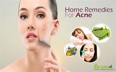 13 most effective home remedies for acne you must try