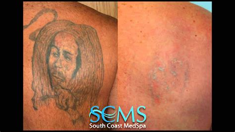 laser tattoo removal not working laser removal orange county before after