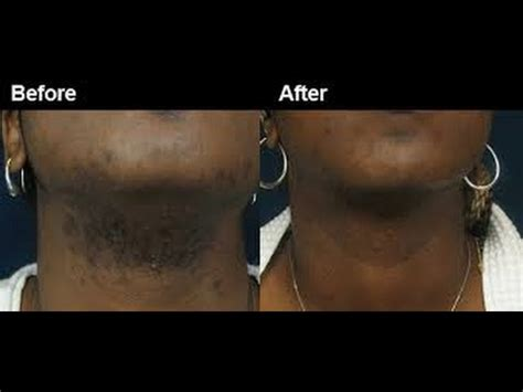 laser hair removal advice for black skin shave before u