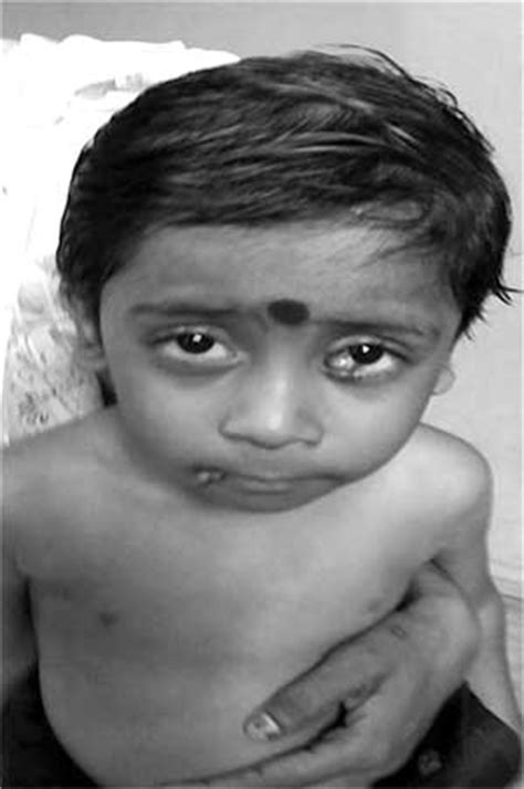 farbers disease farbers lipogranulomatos