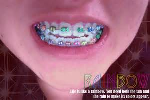 cool braces colors the gallery for gt cool braces colors ideas for