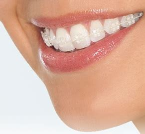 Harga Clear Ortho types of braces acuity orthodontics